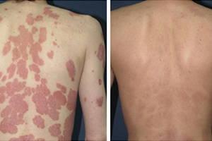 Дермасептик до и после применения