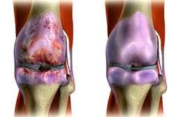 С гелем Артрозгель обновляются клетки суставного сочленения.